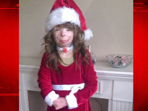 Arson victim only wants cards for Christmas