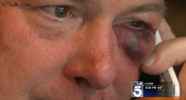 Lawyer and D.A. investigator in bloody brawl in O.C. courthouse