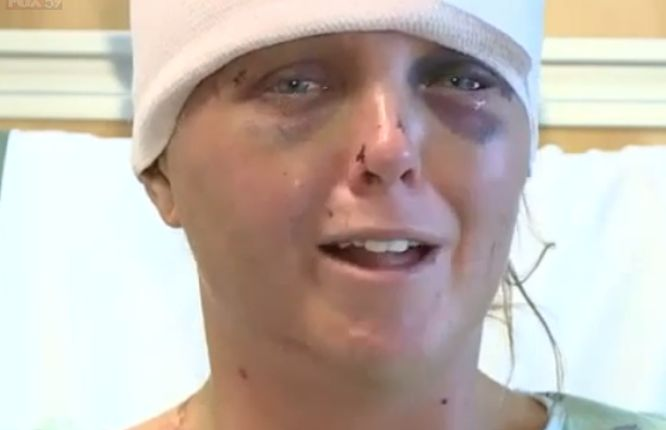 Woman says ex-boyfriend tried to rip her tongue out in brutal attack