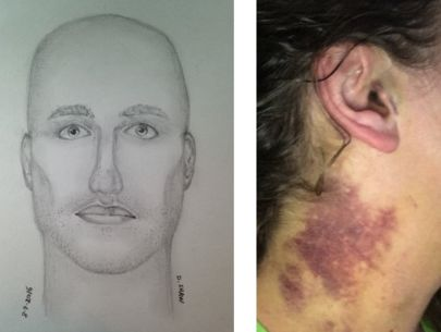 Woman recounts brutal park attack; $10K reward offered for tips