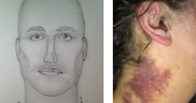 Redmond woman recounts brutal Marymoor Park attack; $10,000 reward offered for tips