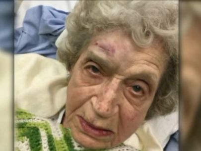 WWII veteran beaten, robbed in her home speaks out, gives thanks
