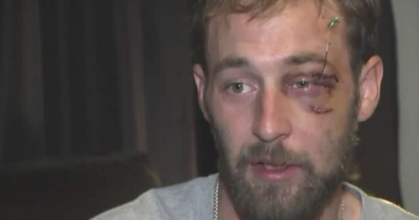 Vicious beating after bumping into someone leaves dad battered, shaken