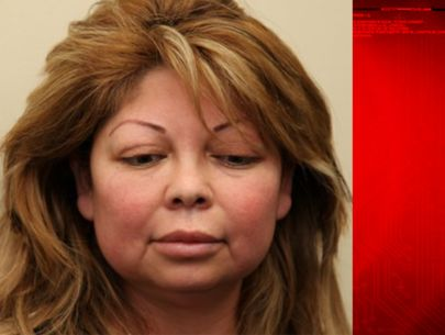 'Vampire facelift' provider charged with murder after cosmetic procedure