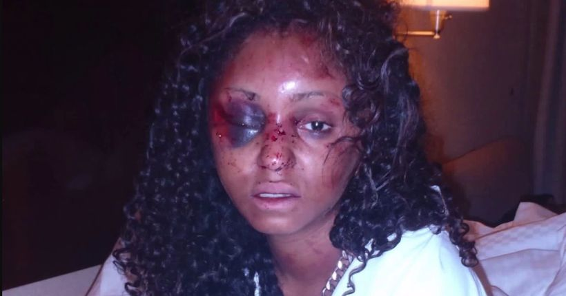 Woman details assault by date she met on Instagram