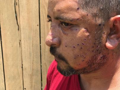 Cyclist hit by shotgun blast in random Austin drive-by has pellets in brain