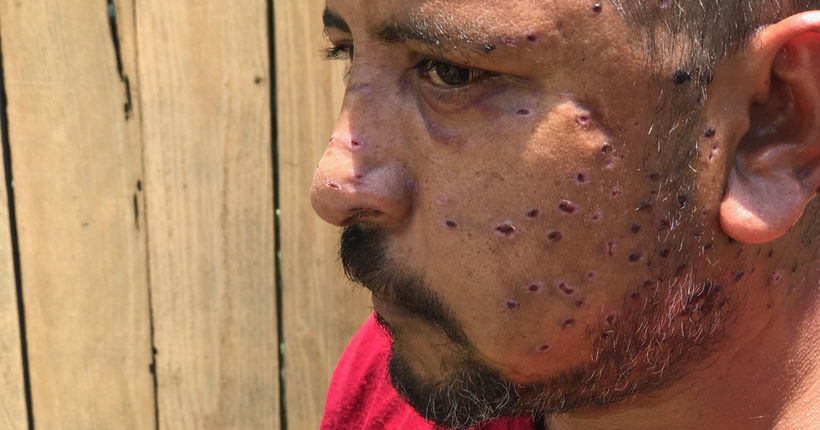 Cyclist hit by shotgun blast in random Austin drive-by has pellets in brain