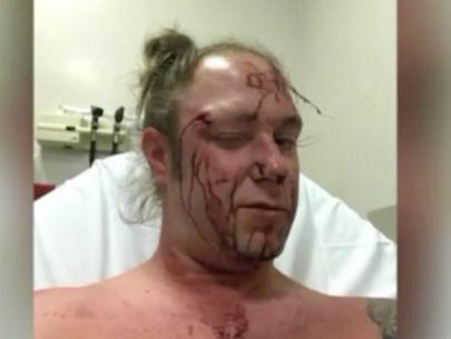 Man beaten bloody in road rage incident (Warning: Graphic)