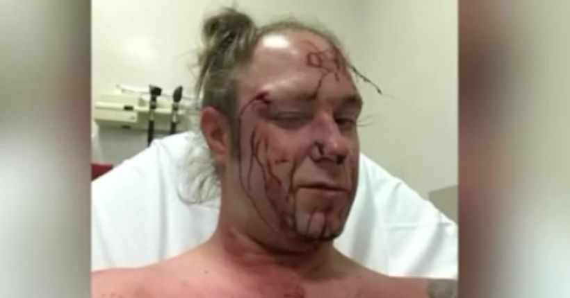 Man struck in head with metal object during road rage incident in Stanton (Warning: Graphic images)