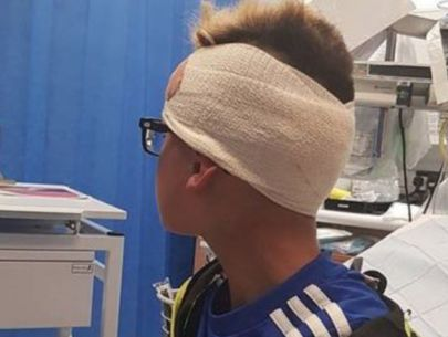 Bullies leave boy with nail in the back of his head