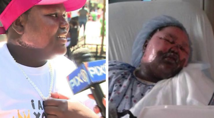Block party held in honor of Bronx girl scalded by boiling water