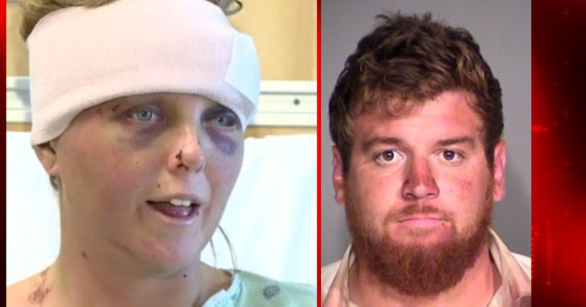 Man accused in girlfriend's brutal 2016 beating settles on plea deal