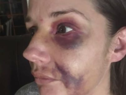 Woman viciously attacked after warning others of man fondling himself