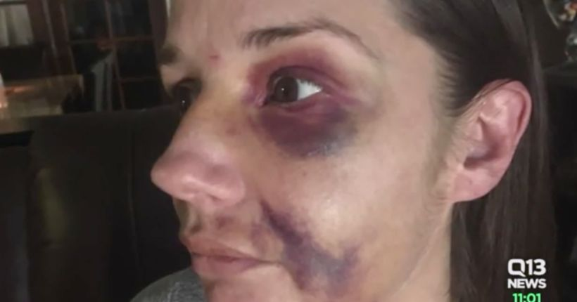 Woman viciously attacked after warning others of man fondling himself in public