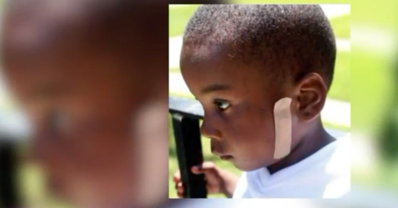 5-year-old Chicago boy shot for second time in two years
