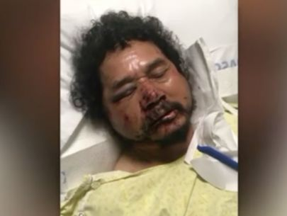 Fruit vendor brutally beaten in South L.A. after robbery, stepson says