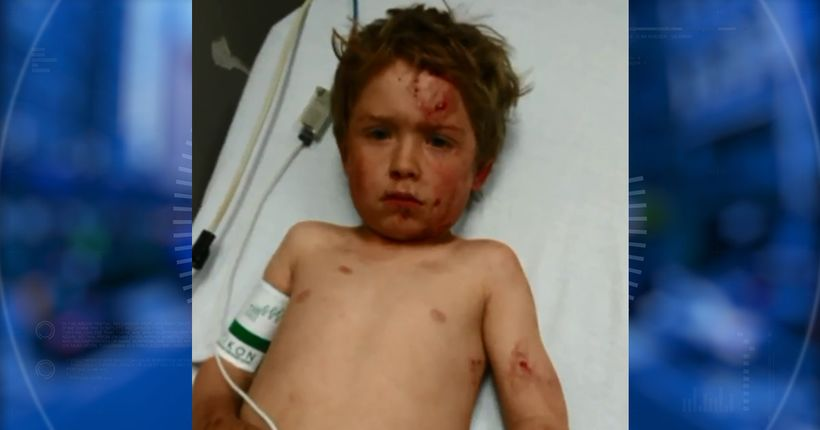 'He could have killed my son,' 5-year-old boy mauled by dog