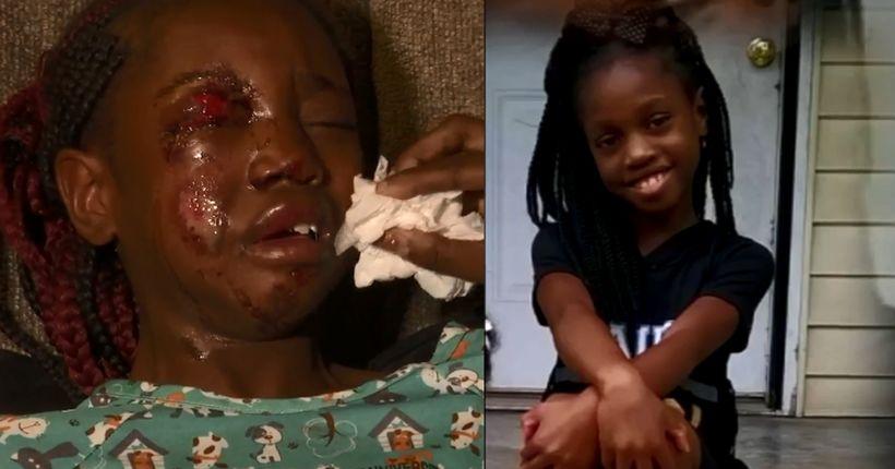 Nashville child injured after being hit by truck