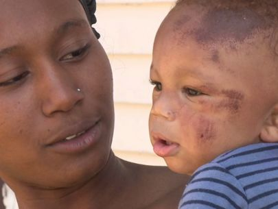 Mom picks up boy from day care with scrapes, swollen head