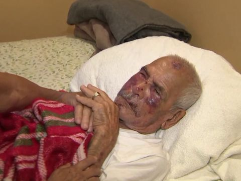 Man, 92, allegedly beaten with brick, stomped on Fourth of July