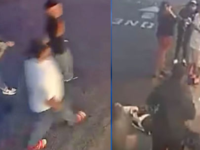 Man suffers debilitating head injuries in unprovoked assault; suspects sought