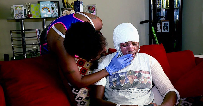 Family warns about 'Hot Water Challenge' after teen severely burned