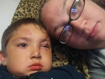 6-year-old hospitalized after defending friend against bullies